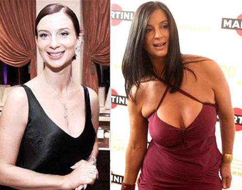 Как уменьшить грудь у женщин без операции